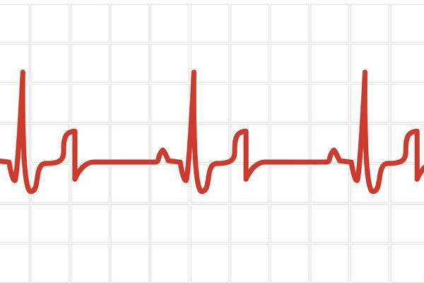 POZNATI HIRURG izazvao HAOS: Sve što znate o bolesti srca je LAŽ, SAMO trebate da uradite ovo!