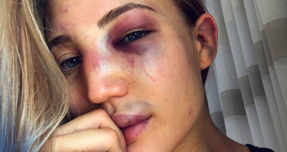 Pretucena-prelepa-Anastasija-i-jos-je-i-ponosna-na-to-VIDEO