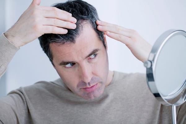 Gubite kosu? Konačno otkriven lek za ćelavost! Imune ćelije aktiviraju rast kose (FOTO) (GIF)