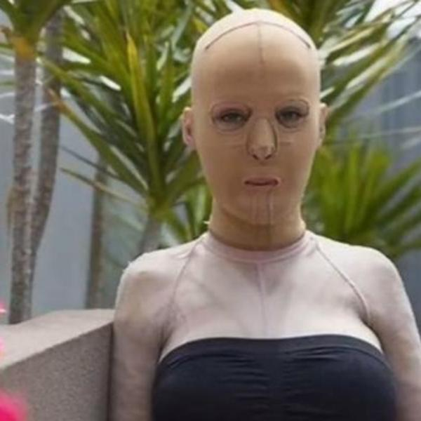 LJUBOMORNA ŽENA JE ŽIVU SPALILA: Srpkinja Dana je 3 godine nosila masku, imala 200 operacija a evo kako izgleda sada (FOTO) (VIDEO)