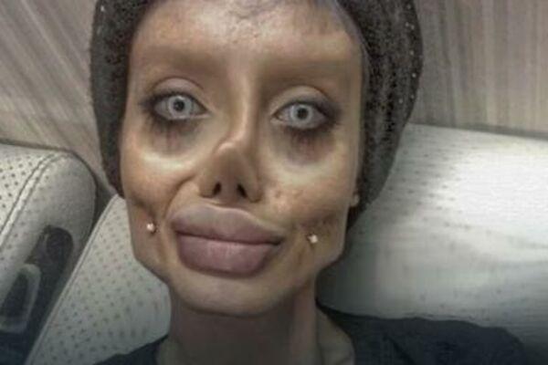ŽELELA JE DA LIČI NA ANĐELINU DŽOLI, OPERISALA SE 50 PUTA, SADA JE ZOVU HODAJUĆI KOSTUR! Evo kako je izgledala pre svih operacija! (FOTO)