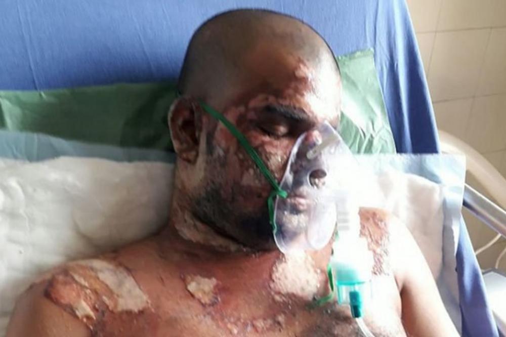 PAKLENI PLAN! Ljubavniku spalila lice da bi uzeo identitet muža kojeg je ubila! (FOTO)