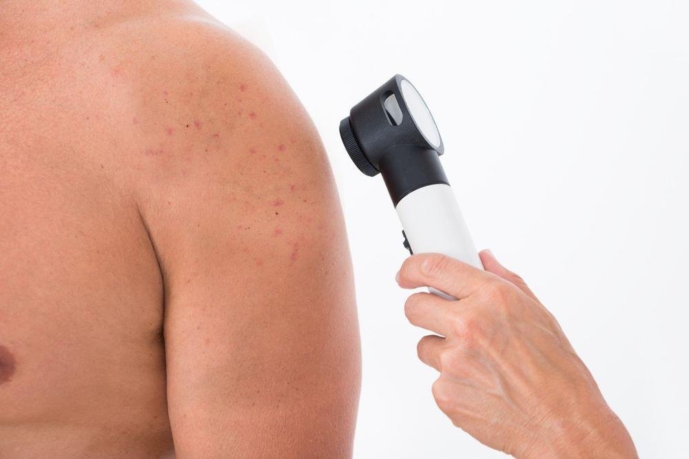 Melanom je jedan od najčešćih vrsta raka, zbog toga je neophodno redovno pregledati kožu