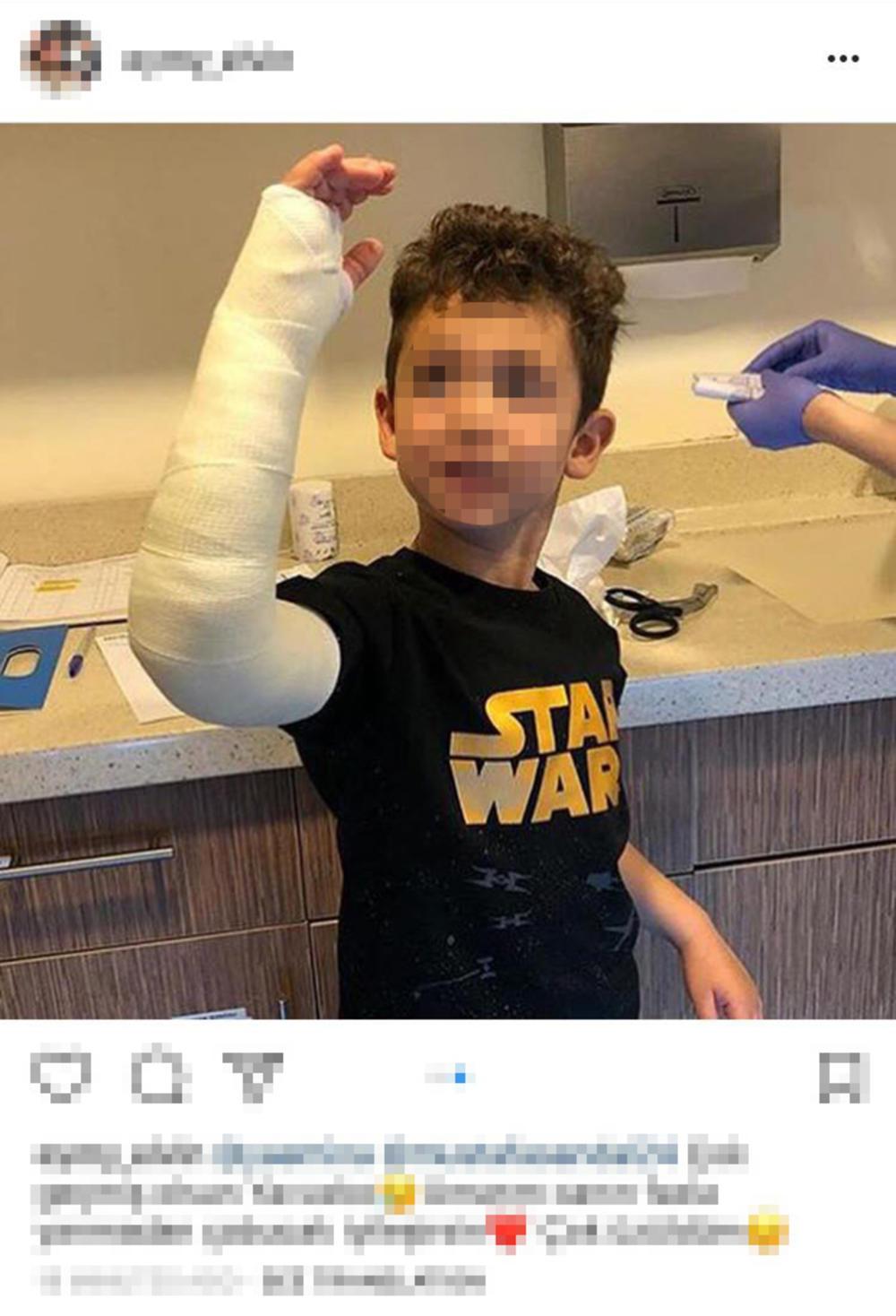 Eminin mlađi sin, Javuz, povredio je ruku