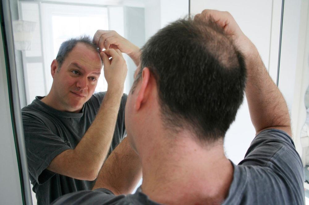 Presadjivanje kose u hrvatskoj cijena