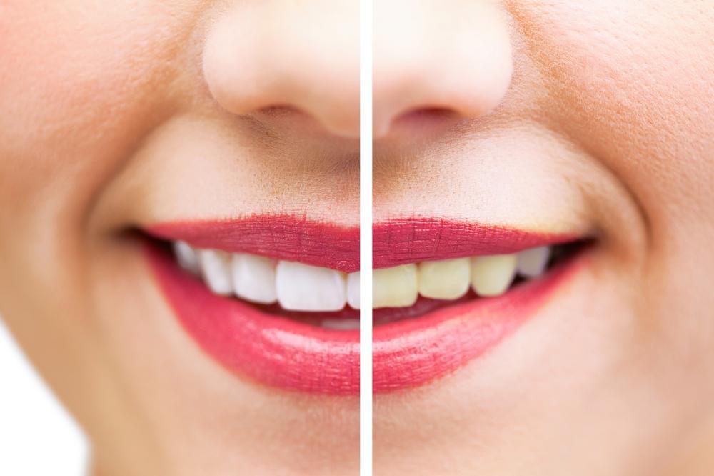 White smile trakice za izbeljivanje zuba iskustva