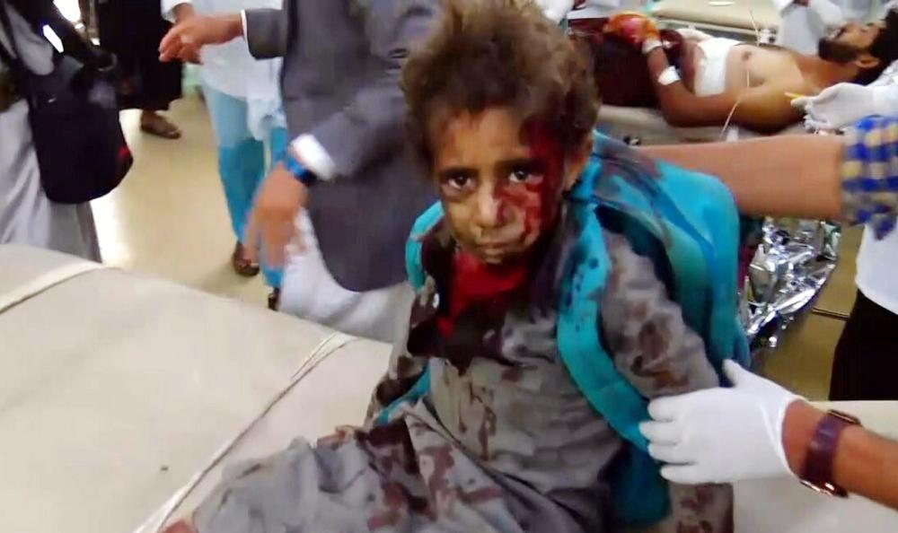 MASAKR-NAD-DECOM-U-JEMENU-U-napadu-saudijske-koalicije-UBIJENO-29-MALISANA-VIDEO