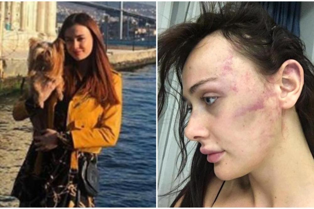 UPI*KILA SAM SE OD BOLA, IŽIVLJAVAO SE SATIMA! Srpska manekenka o mučenju od strane Turčina: Ostala sam bez svesti!